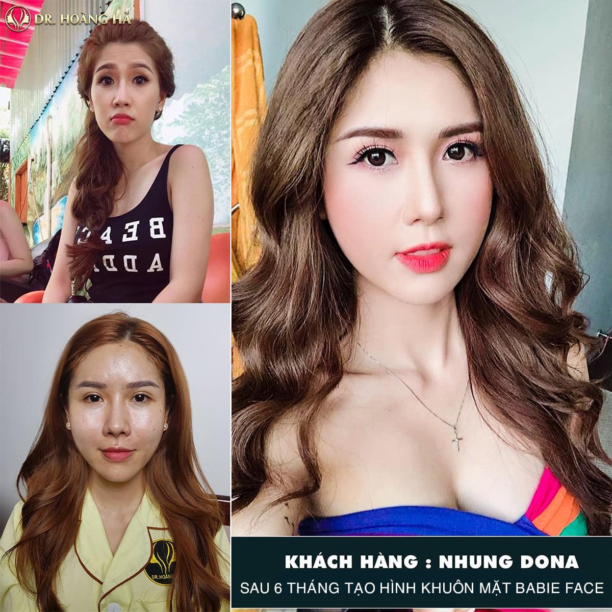 Hình ảnh của Nhung Dona sau khi thực hiện cấy mỡ mặt